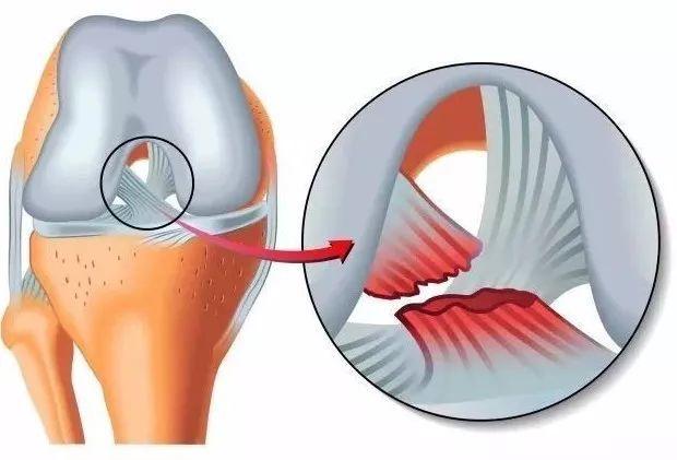 Sports Medicine Knee Injury